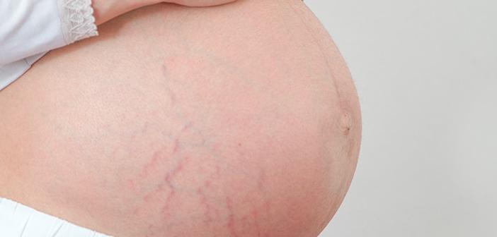 hamilelik-catlaklar